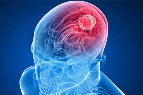 Ученые обнаружили вирус, который борется сраком мозга
