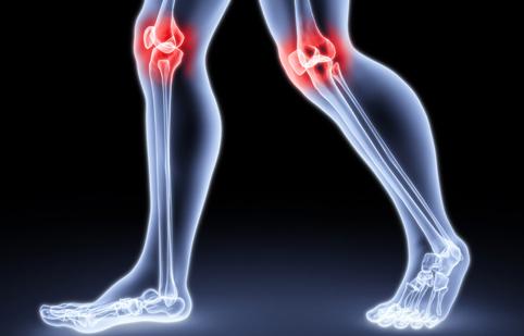 Ученые утверждают, что спортивная ходьба лечит артрит