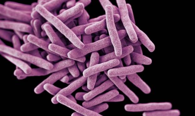 Ученые благополучно испытали новейшую вакцину оттуберкулеза
