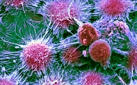 Вкомпании IBM создали чип для поиска раковых опухолей