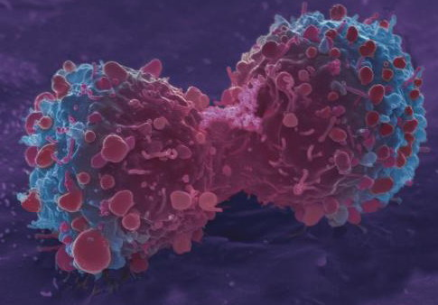 Ученые обнаружили, что раковые клетки погибают отсолнечного света