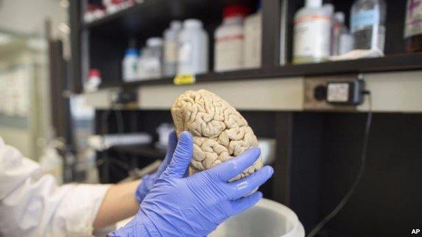 Внижегородской лаборатории искусственно сделаны нейроны памяти