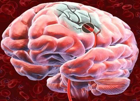 Ученые отыскали связь между инсультом идепрессией