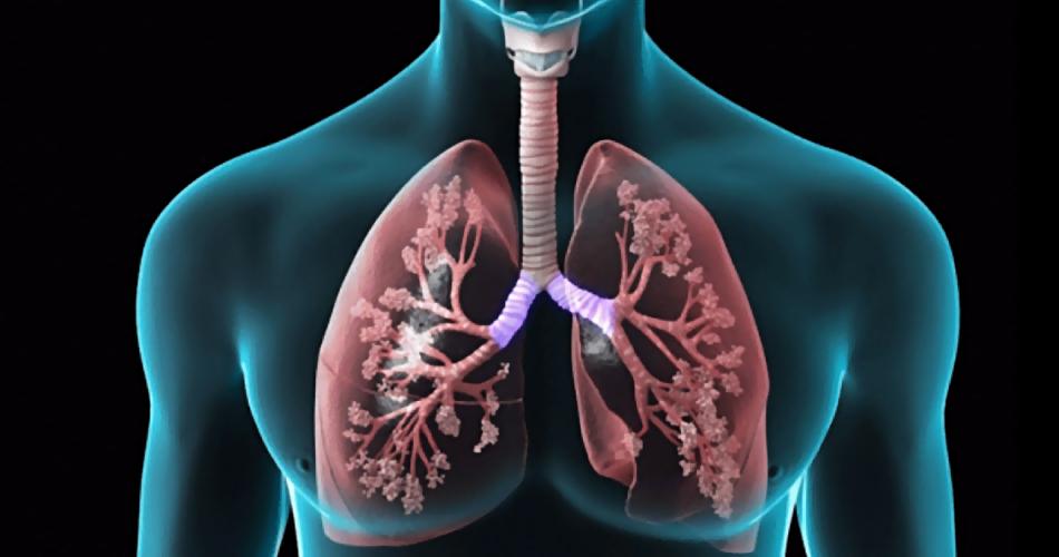 Врачи назвали три симптома, указывающие на опасную болезнь легких